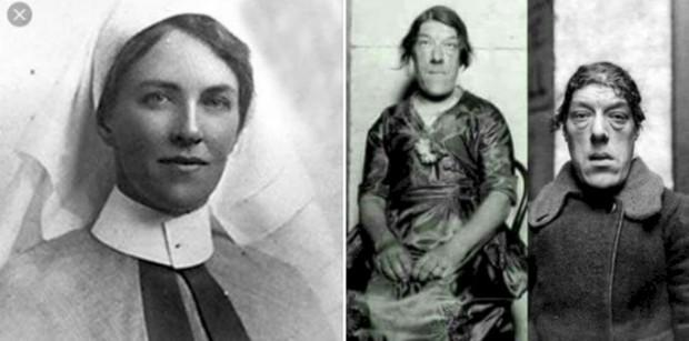 > Мери Ан Уебстър преди и след заболяванетоНачалотоМери е родена