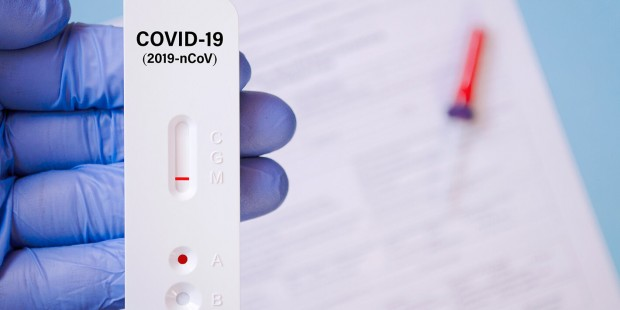 Френски учени твърдят, че са създали нов тест за COVID-19,