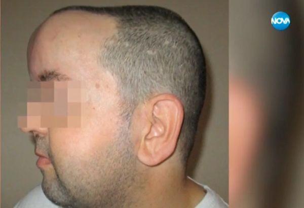 Уникална операция даде шанс за живот на мъж с мозъчен