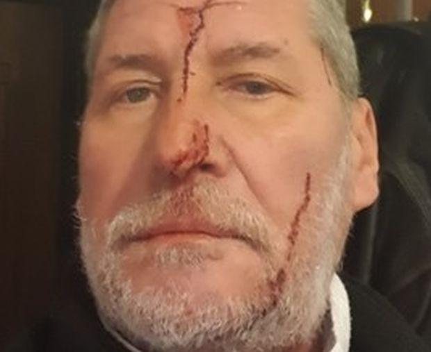 С порезни рани по лицето е нападнатият фоторепортер в Бургас