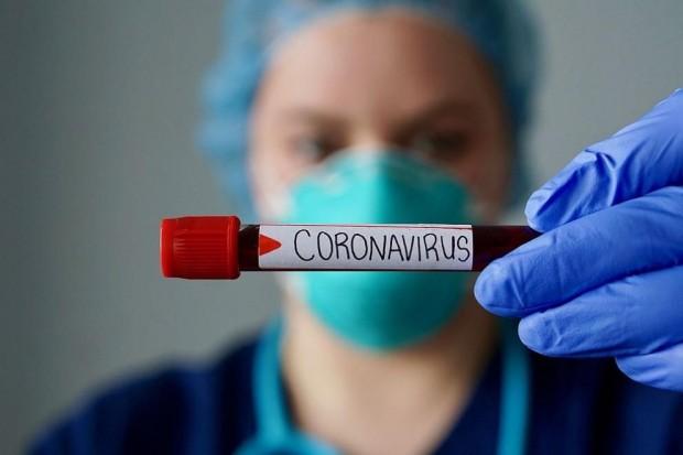 Общо 15 899 теста за COVID-19 са направени в лабораториите
