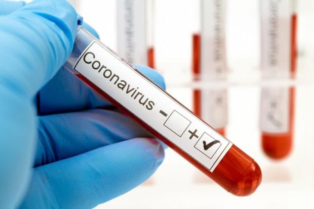 Двама пациенти, заразени с COVID-19, са починали късно снощи в