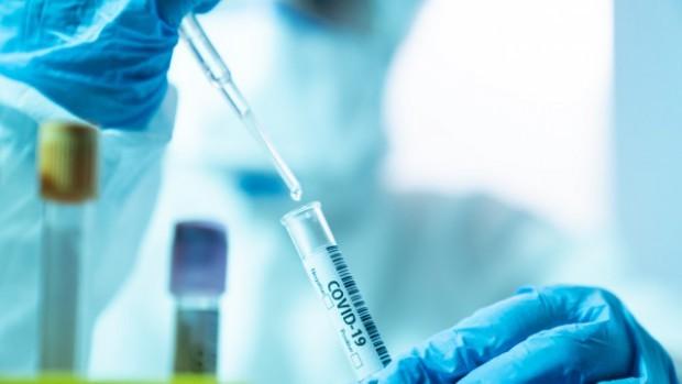 265 са новодиагностицираните с коронавирусна инфекция лица през изминалите 24