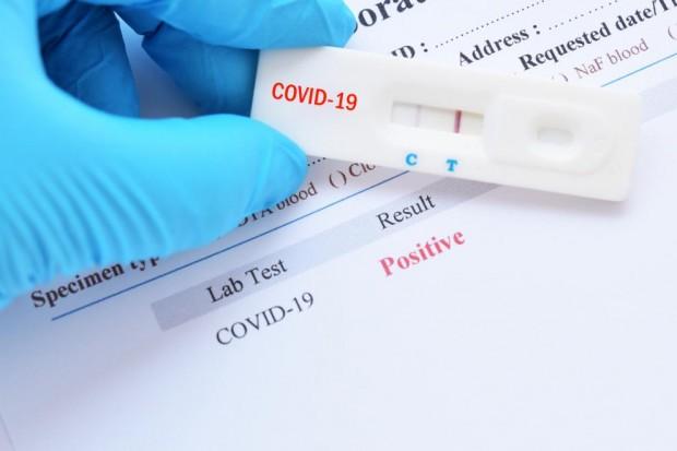 Как COVID-19 се отразява върху здравните системи и икономиките на